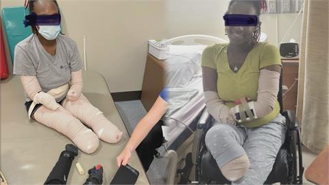 染疫後為活下去而截肢!3寶媽靠義肢重新站起 淚勸:一定要打疫苗