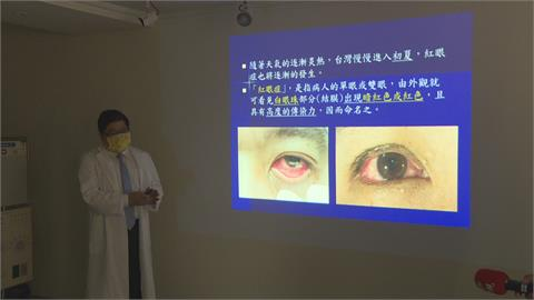 雙眼紅通通勿輕忽!女子自行點藥未改善 就醫竟罹甲狀腺眼癌