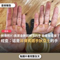 事實查核/【錯誤】網傳照片「奧運金牌郭婞淳的手,繭是長這樣子的」?