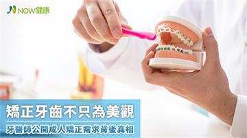 矯正牙齒不只為美觀 牙醫師公開成人矯正需求背後真相