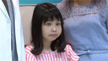 20歲少女年幼得風濕!右眼全盲、身高130公分