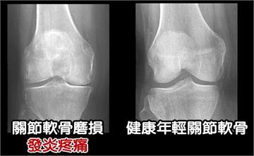 膝蓋關節退化,吃軟骨補軟骨? 談雙軟骨成分的功效