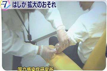 沖繩麻疹疫情擴大 群聚感染已56人確診