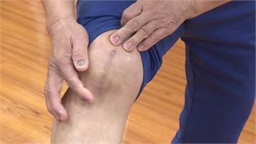 「牛津半膝關節手術」助老婦重生 雙腳變超軟Q
