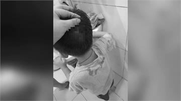 童撞破頭送醫 母控院方刁難還退卡拒診