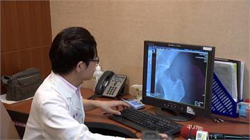 27歲女吃減肥藥4年 摔倒骨折才知骨質疏鬆