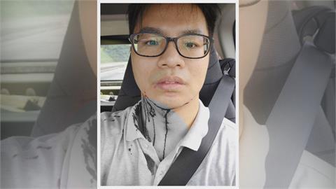 空手道教練「國道救狗」被咬傷 網友大讚:勇敢好心人