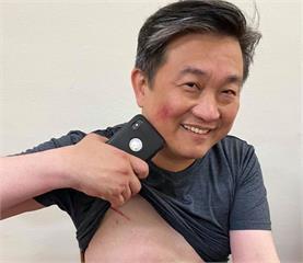 快新聞/藍委突襲堵「陳菊」 王定宇掛彩:國民黨助理介入衝突!