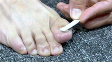 衛生環境搭配藥物 灰指甲掰掰!