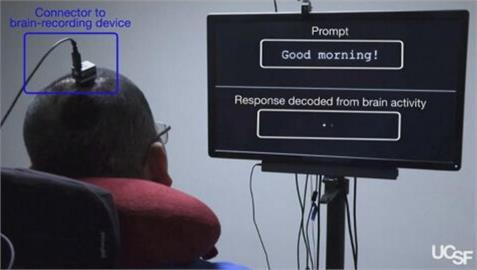 失語症治療新突破! 台裔科學家張復倫團隊解碼大腦訊號