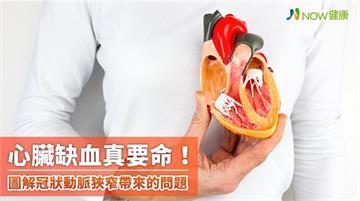 心臟缺血真要命! 專家圖解冠狀動脈狹窄帶來這些問題