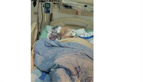 柔道童遭重摔 昏迷16天腦壓降至正常值