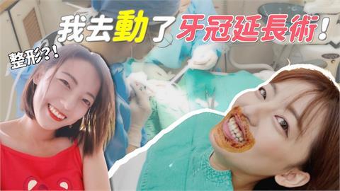 笑再開都不怕!「交大之花」求完美勇做牙齦手術 網讚:好勇敢