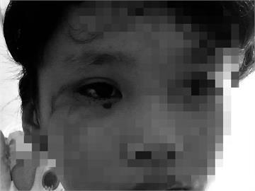 泰國12歲女童疑遠端上課狂盯手機8小時 隔天竟眼睛血管爆裂流血淚