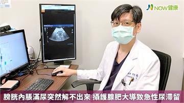 膀胱內脹滿尿突然解不出來 攝護腺肥大導致急性尿滯留