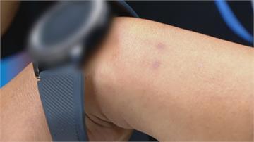 控戴智慧表手腕2點滲血 業者:產品檢測正常