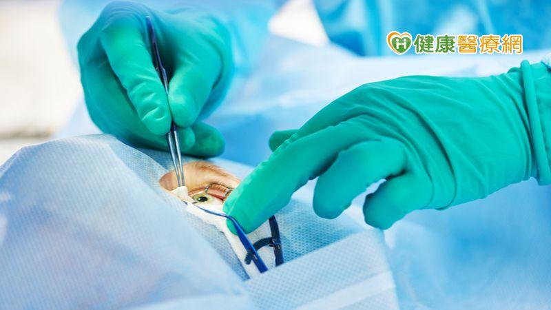 「精準微脈衝」完美切口 白內障手術成功關鍵