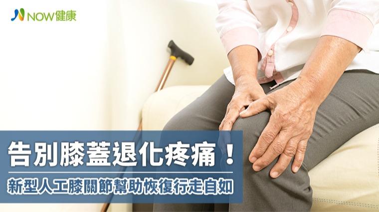 告別膝蓋退化疼痛! 新型人工膝關節幫助恢復行走自如