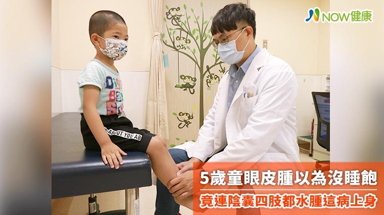 5歲童眼皮腫以為沒睡飽 竟連陰囊四肢都水腫這病上身