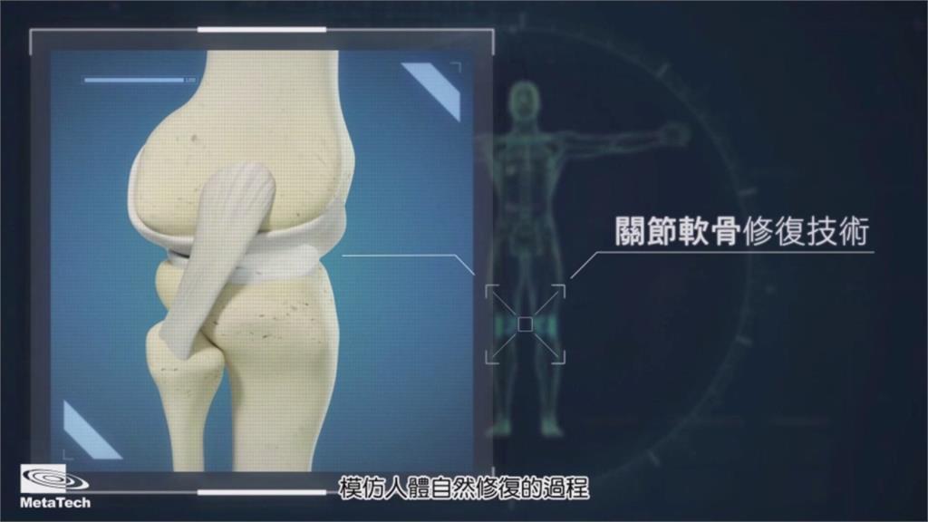 台灣再生醫學突破 癱瘓病人復原率大增