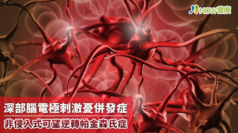 深部腦電極刺激憂併發症 非侵入式可望逆轉帕金森氏症