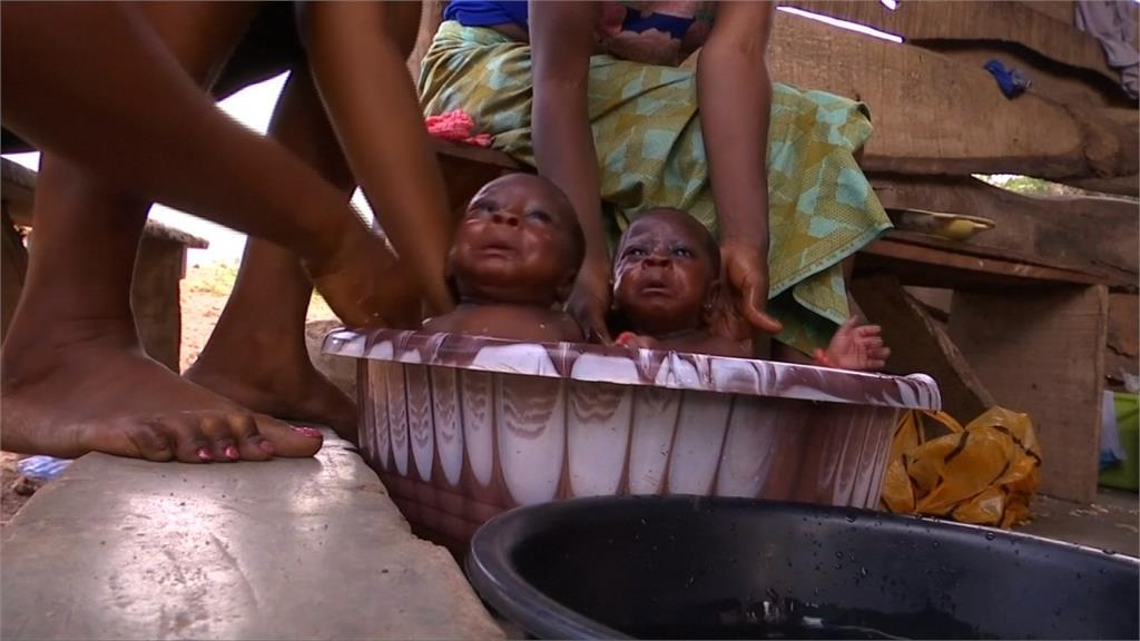 秋葵葉神奇功效?奈及利亞小鎮滿滿雙胞胎