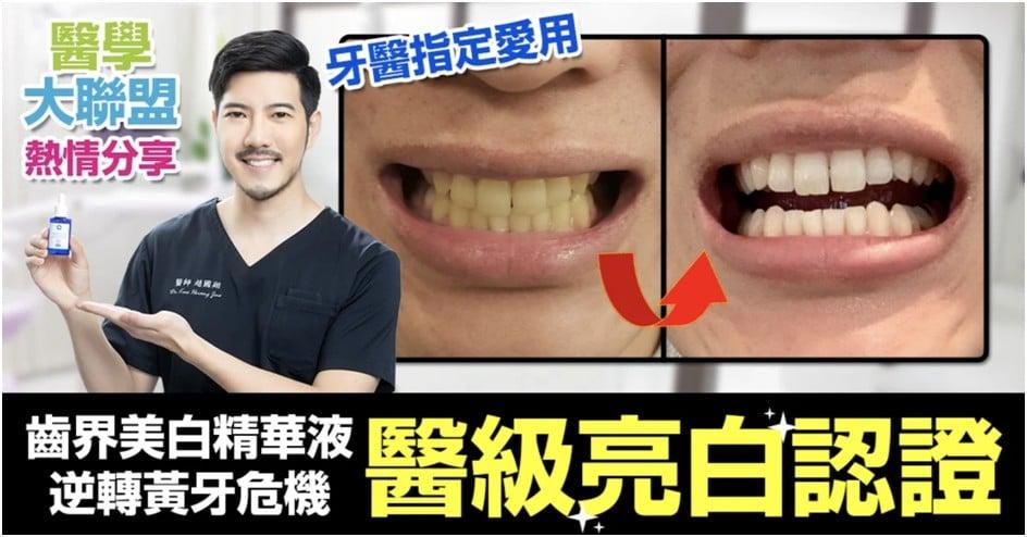 《醫學大聯盟》女星牙齒冷光痛到怕?「美齒界亮白精華液」戰勝黃牙 <em>醫師</em>說靠這關鍵成分!