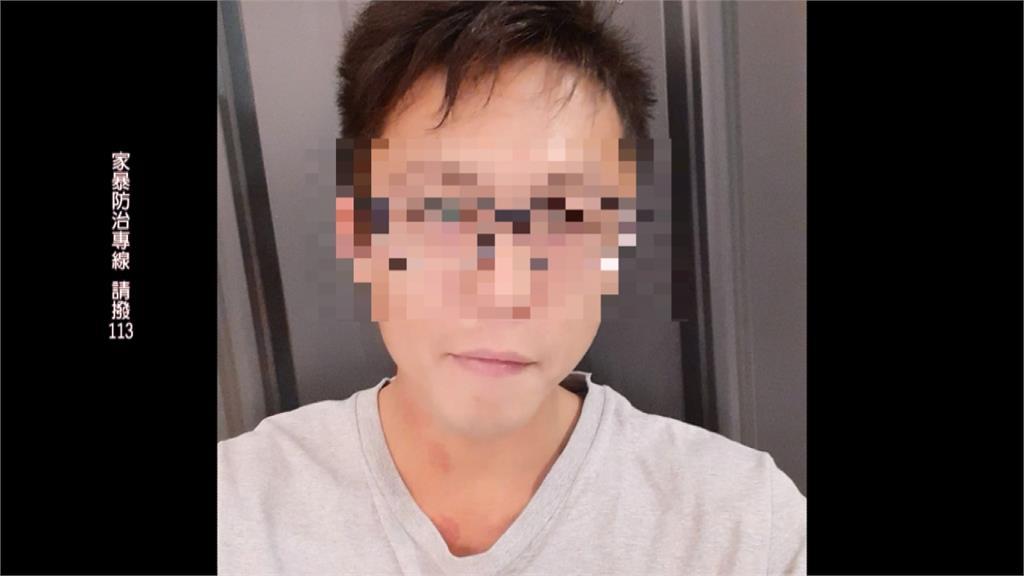 冷血繼父虐死4歲童 網友揪團路過「關心」小心觸法