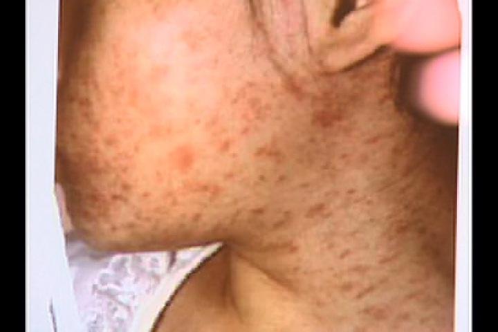 虎航爆發麻疹感染 85乘客中2人出現症狀