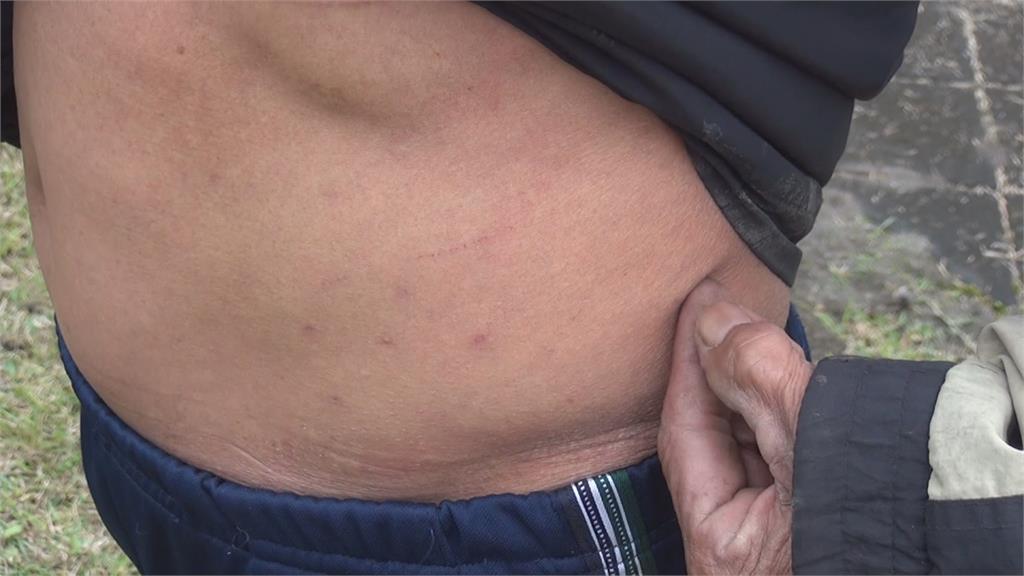 花蓮鳳林鎮環保科技園區 紅火蟻入侵被咬傷  先抹「這東西」勿抓揉