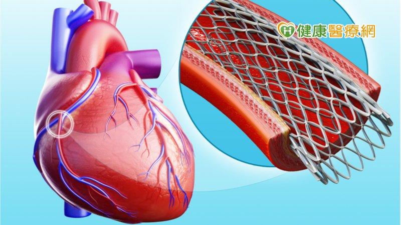 車禍竟致主動脈剝離 套膜支架手術救一命