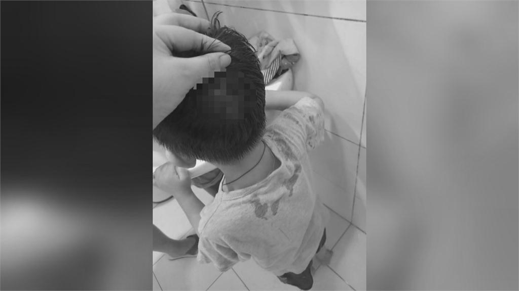 3歲男童跌破頭送急診 母控醫院刁難還退卡拒診