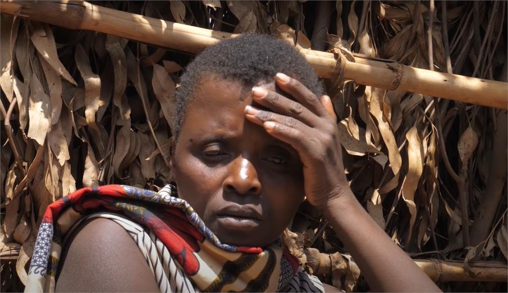非洲婦人生「尖頭畸形兒」遭丈夫拋棄!冷血父:把「惡魔的後裔」殺了