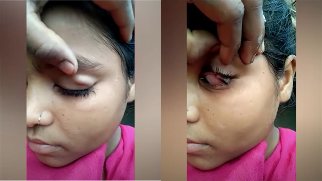 印度15歲少女不流淚改掉「石頭淚」!醫學謎團看診也找不出病因