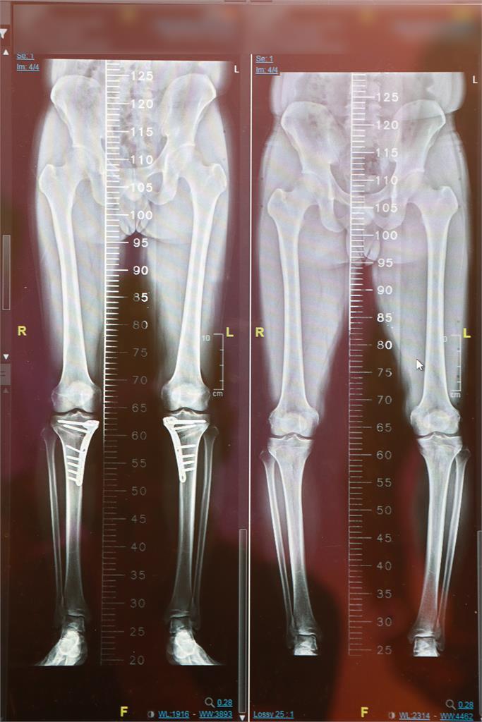 退化性關節炎只能換人工關節?「保膝手術」半小時助他重返壘球場正常跑跳
