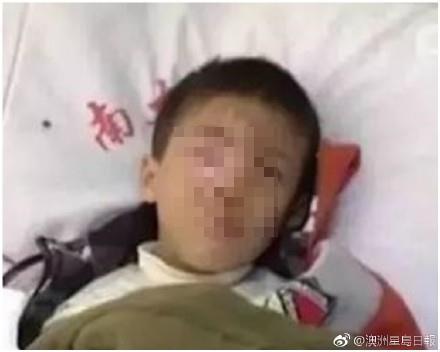 中國8歲童把「這物」丟寶特瓶 下秒突爆炸「右眼球溶解」終生失明!