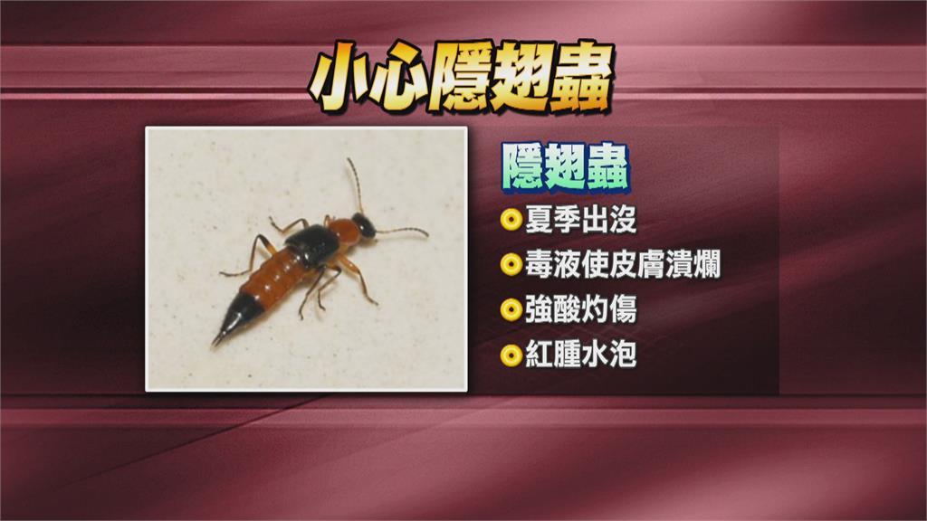 打死小蟲皮膚大面積紅腫 醫師:隱翅蟲「不能拍」