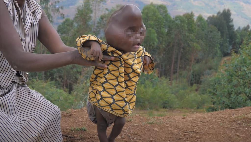 非洲婦生「尖頭畸形兒」遭丈夫拋棄!冷血父:把「惡魔的後裔」殺